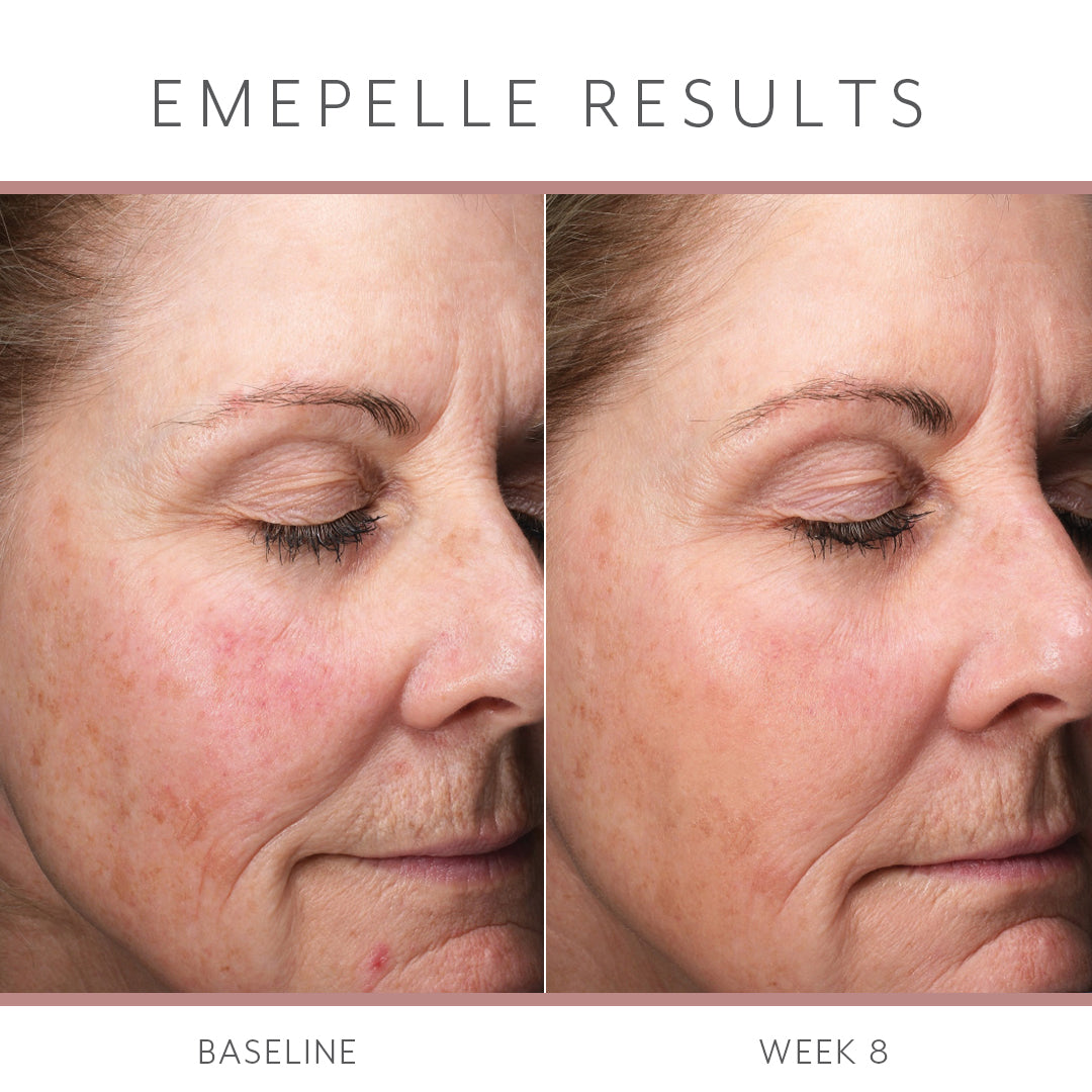 Emepelle Daily Serum 35ml - COMING SOON