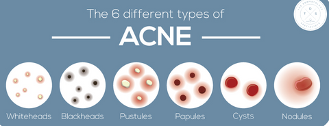 6 different types of acne