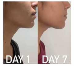 Gua Sha before and after