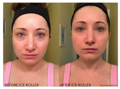 before and after ice roller