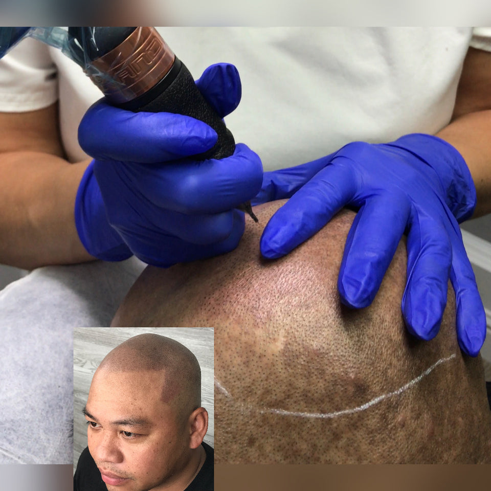 Scalp Micropigmentation Microhair Aesthetics