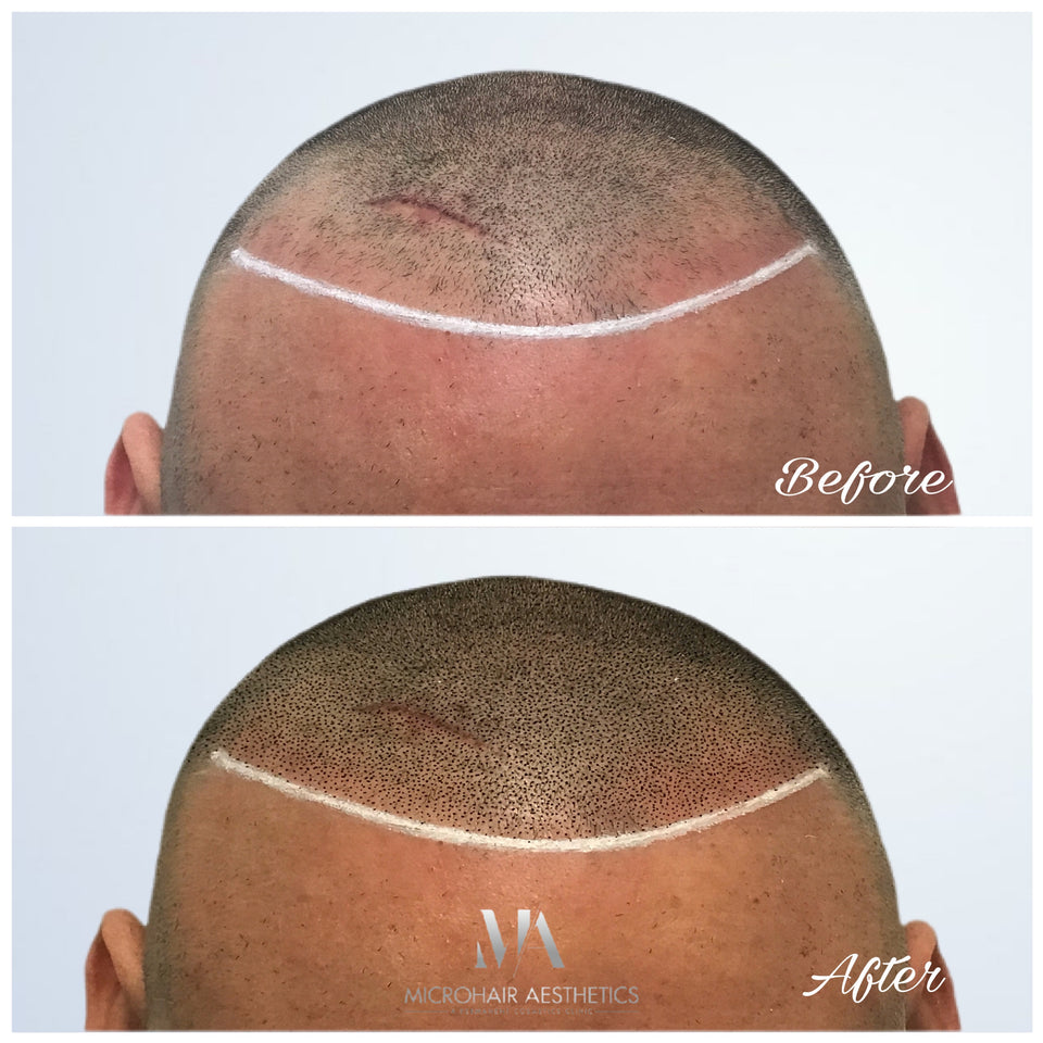 Scalp Micropigmentation Before After Microhair Aesthetics