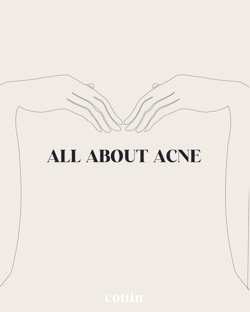 ACNE: HOW AND WHY