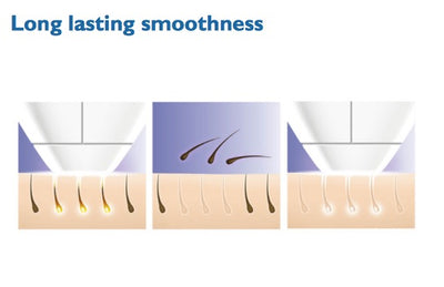 Laser Hair Removal Handset - Permanent Hair Removal