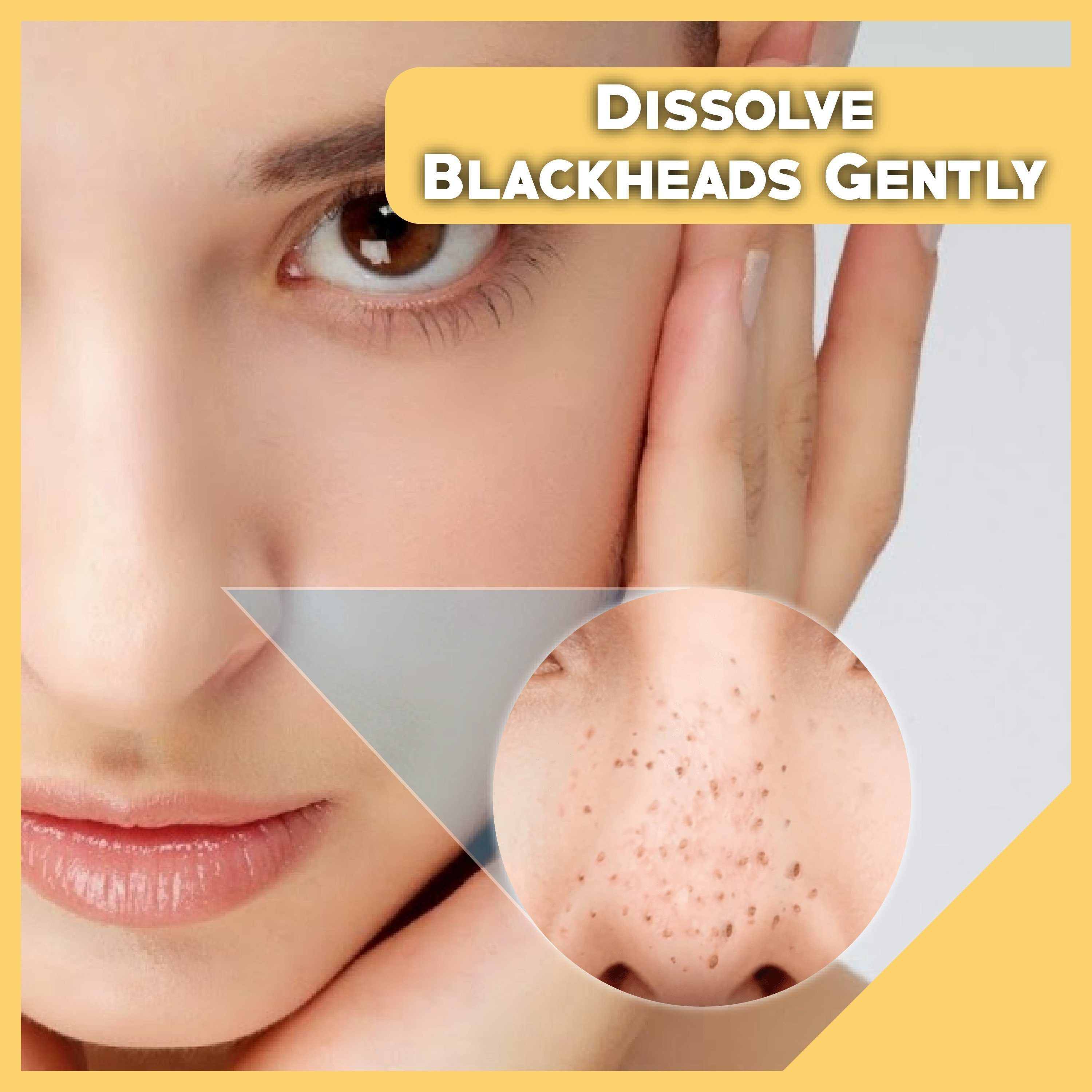 Electric blackhead Remover 2.0 Beauty ModerateRose
