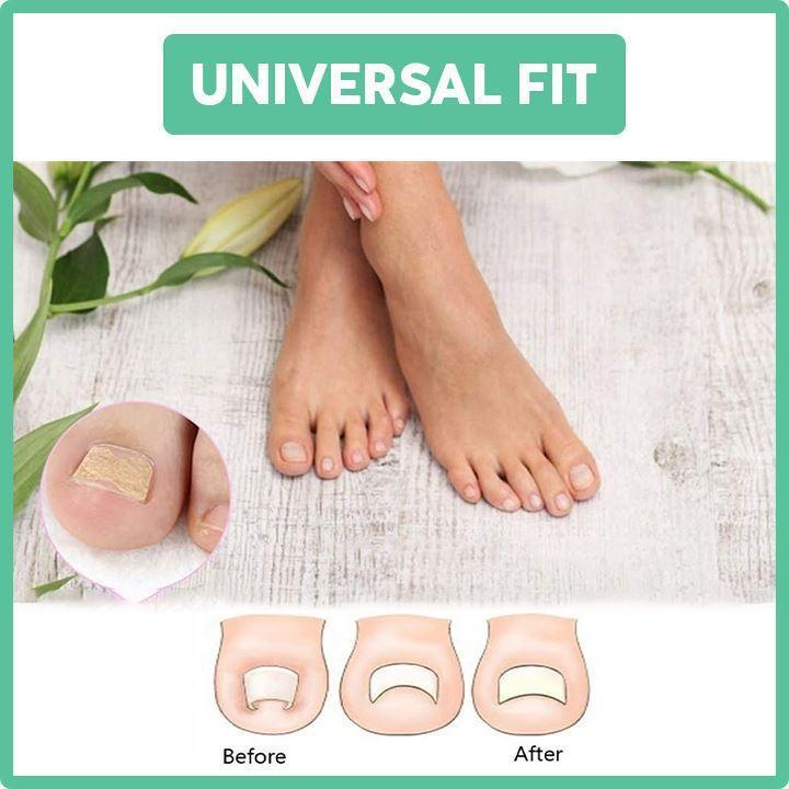 Glue-Free Toenail Correction Patch Beauty ferryhappy