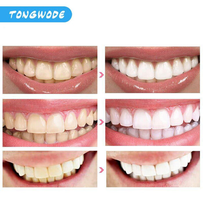 LED light  Fast Teeth Whitening - Joy Shop