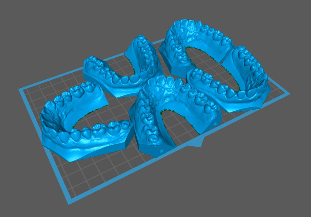 Sonic XL 4K Full Plate of Dental Arches