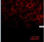 OSI Blood CD or double Lp