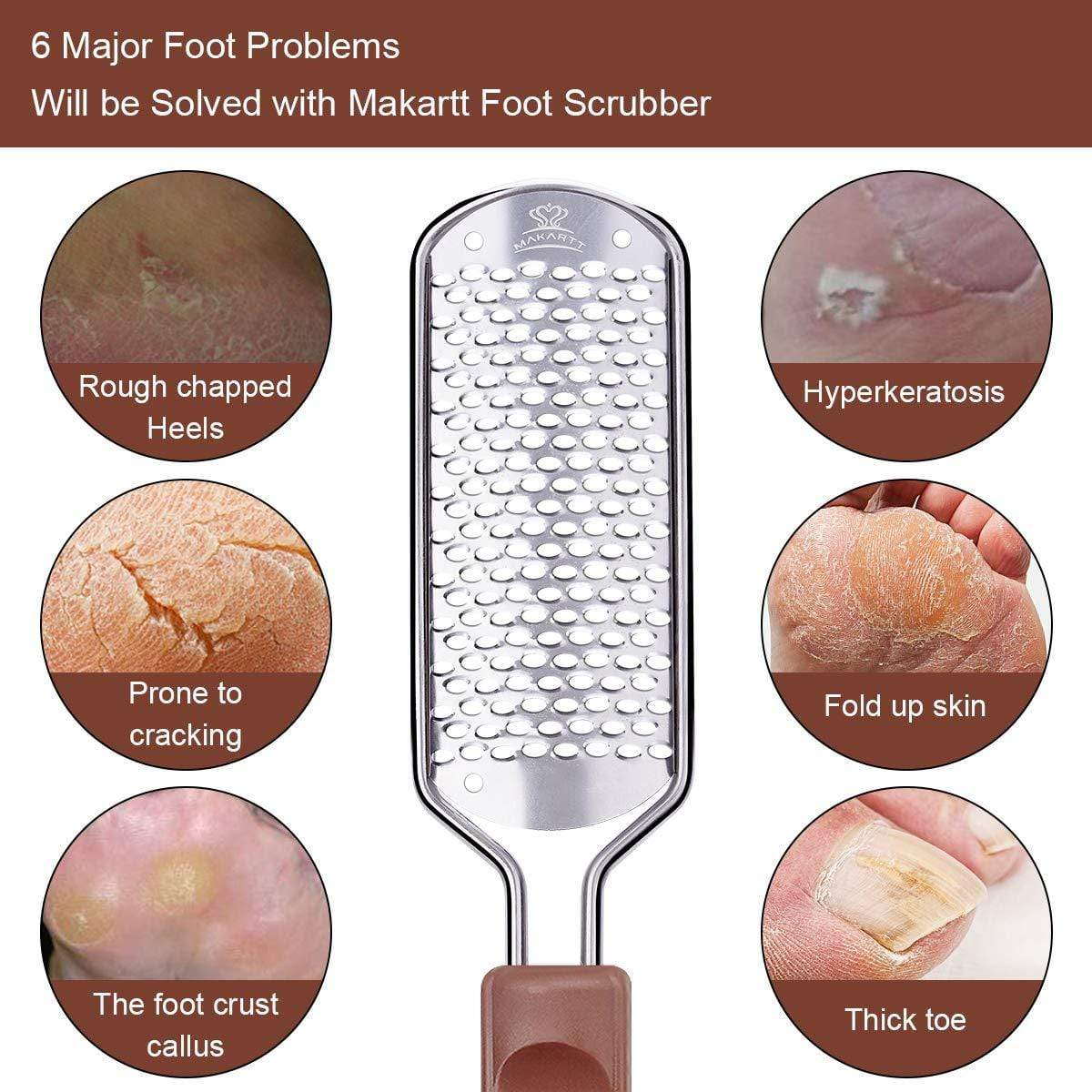 Stainless Steel Foot File - Makartt