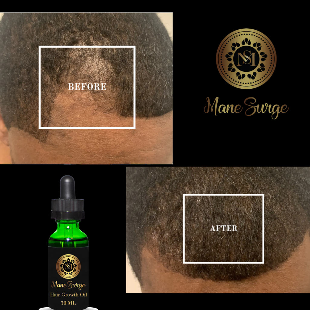 Mane Surge Hair Growth Oil Results 10