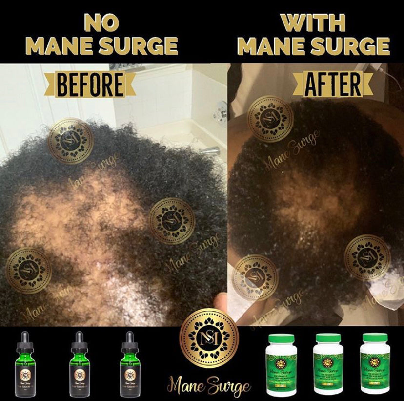 Mane Surge Hair Growth Oil Results 11
