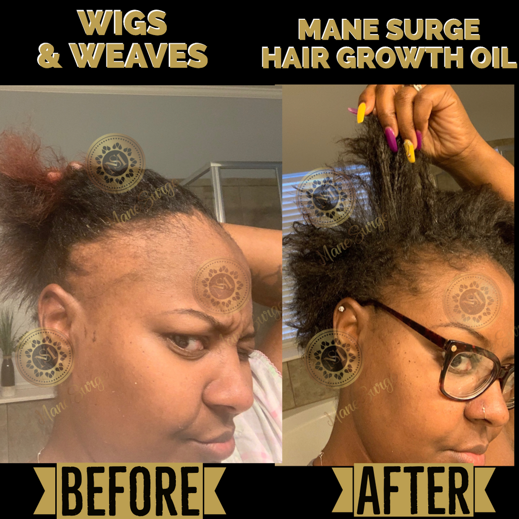 Mane Surge Hair Growth Oil Results 1