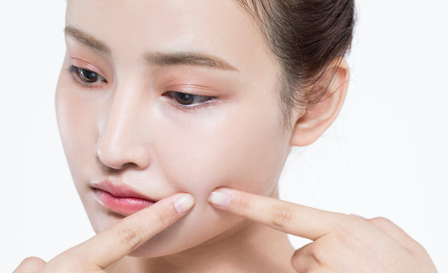 face toner for acne