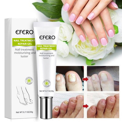 Nail Treatment Serum Nail Foot Nail Fungus Removal Gel Anti Infection Onychomycosis Nail Repair Essence Cream