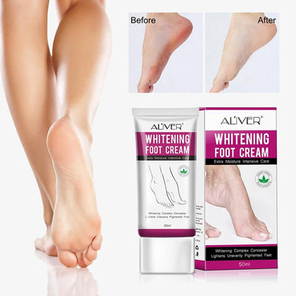 Whitening Foot Cream Moisturizing Treatment Hydrating Care Unevenly Lotion Pigmented Lightens Feet Nourishing