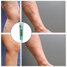 Load image into Gallery viewer, 1PC Varicose Veins Ointment Phlebitis Angiitis Inflammation Blood Vessel Rotten Vasculitis Treatment Legs Spider Treatment Cream