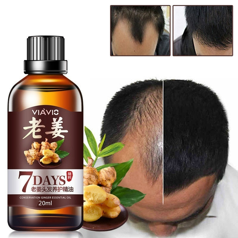 100% natural treatment hair loss care ginger care longevity essential oil men and women 10/15/20/30ml)
