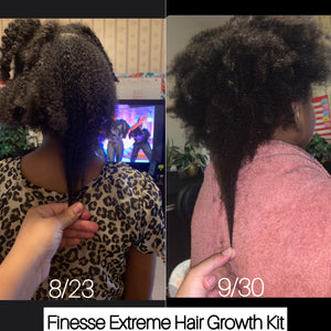 Finesse Hair Growth Kit