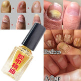 Effective Onychomycosis Removal Essence Anti Infection Bright Nail Repair Foot Care Fungal Nail Treatment Liquid Health Care