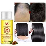 Hair Growth Essence Anti Preventing Loss Essential Oil Scalp Treatment