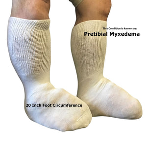 Beyond Extra Wide Bariatric Socks - Pretibial Myxedema