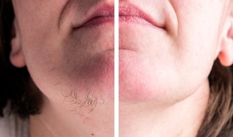get rid of chin and upper lips hair with ipl laser handset device