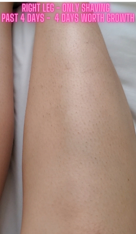 home laser treatments results ipl laser aurora skin glow