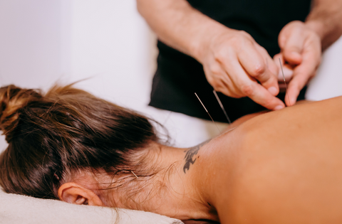 l'acupuncture pour l'endométriose