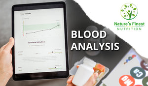 Load image into Gallery viewer, Blood Analysis