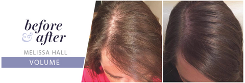 beofre and after monat hair