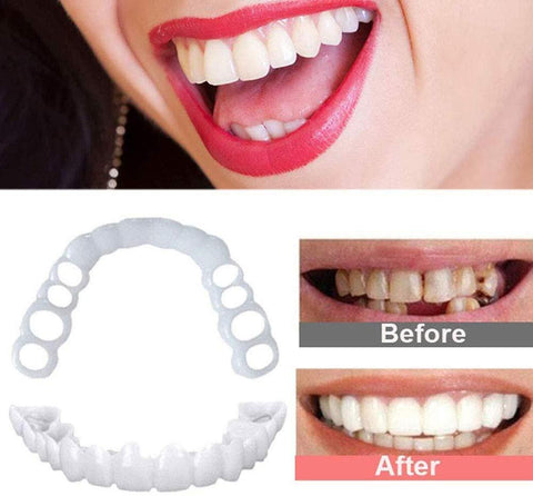 Image of Magical Teethbrace Offer Teeth Whitening Shop5407044 Store
