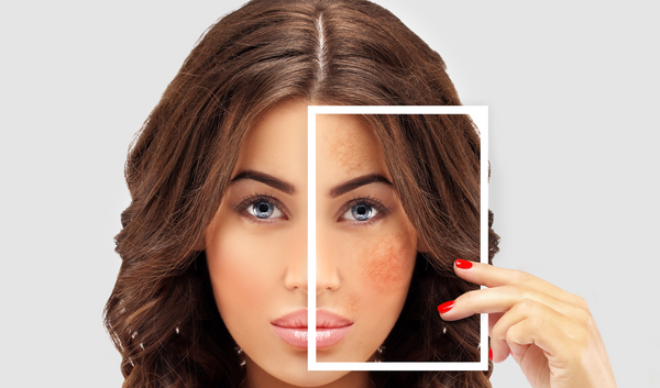 Hyperpigmentation – Dark patches that obstruct your beauty
