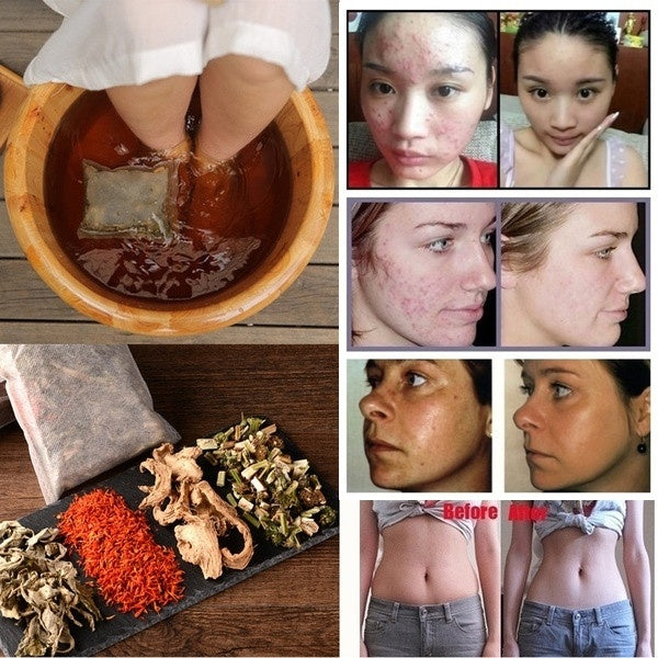5Pcs/bag Lose Weight Eliminate Fatigue  Foot Care Detox  Motherwort Saffron Foot Bath Powder Foot Care Detox  Chinese Medicine Natural Herb Wormwood Ginger