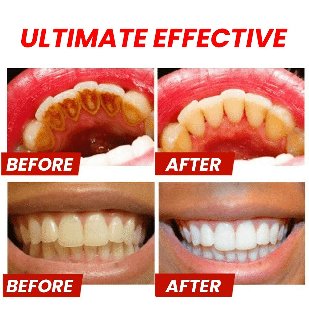 220g Press-type Baking Soda To Remove Tooth Stains Smoke Stains Gums Oral Care Whitening Teeth Multiple Tastes Toothpaste