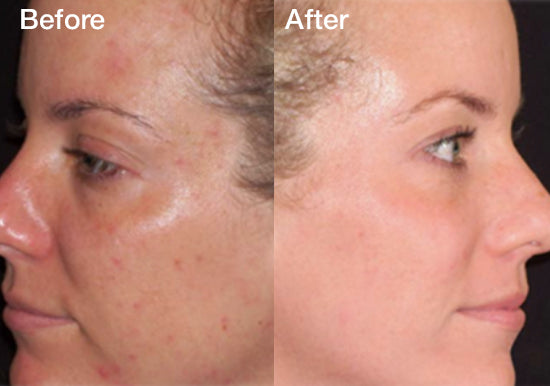 Chemical Peels (Buy 1 Get 1 Free)