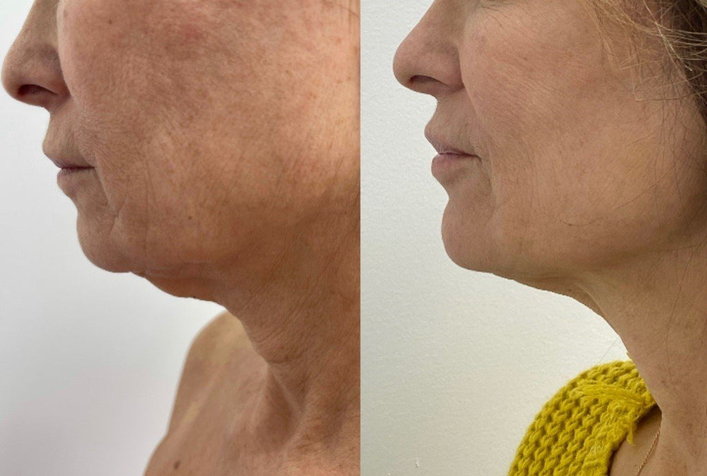 Neck Renuvion Plasma Lipo Scarless Skin Tightening