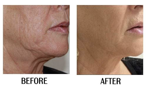 Ultratyte for Facial Rejuvenation