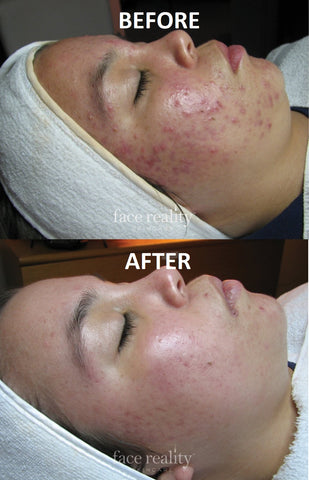 acne face reality pic 2