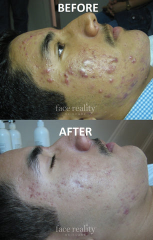 acne face reality pic 3