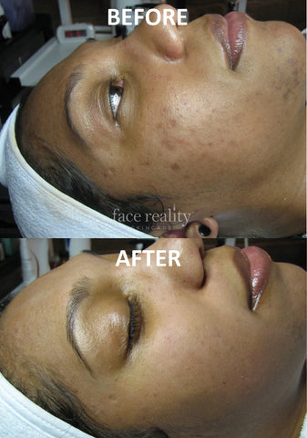 acne face reality pic 4