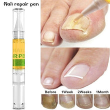 Load image into Gallery viewer, 3ML Nail Nutrient Pen Remove Fungus Nail Repair Liquid Bright Nail Bio-Protective Film Nail Care