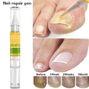 3ML Nail Nutrient Pen Remove Fungus Nail Repair Liquid Bright Nail Bio-Protective Film Nail Care