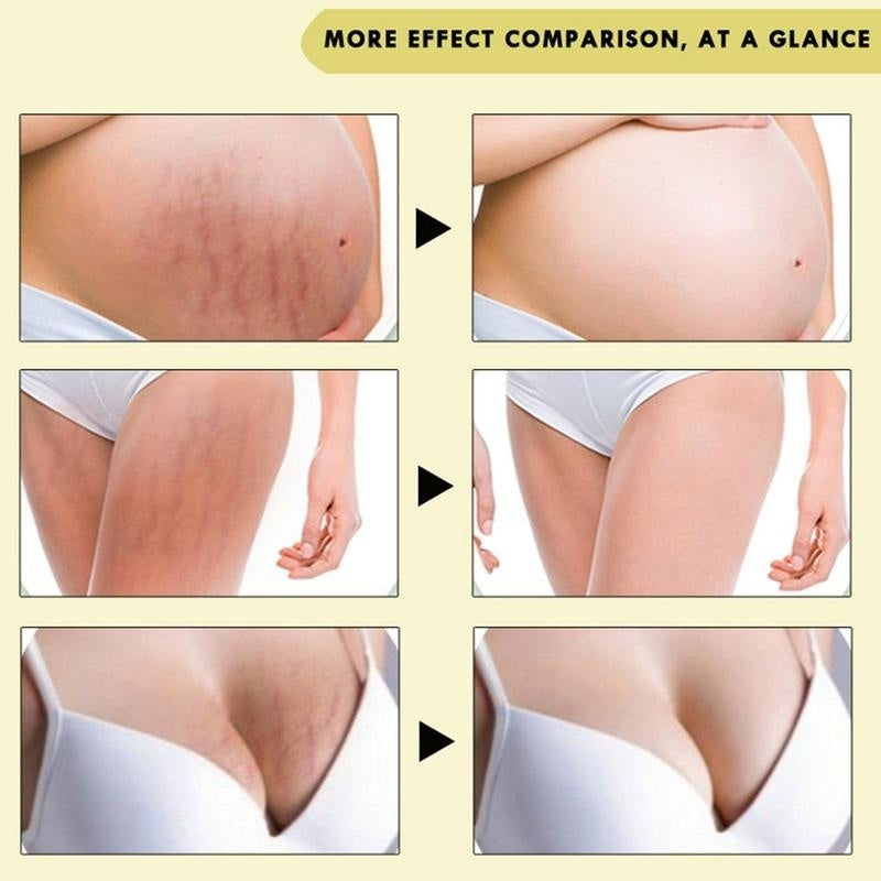 10ml Skin Care Oil Stretch Marks Scar Remover Pregnancy Repairing Cream Treatment Body Repair Oil