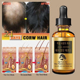 100% latest research and development- Hair Growth Essential Oil Nourish Hair Repair Hair Follicles And Damaged Hair Hair Growth Care(Net content: 20ml/15ml / 10ml / 30ml)