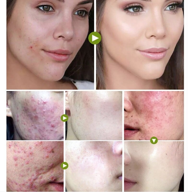 10g/20g/30g Tea Tree Oil Control Face Cream Anti-Acne Shrink Pores Acne Scar Removal Cream Nourish Whitening Acne Scar Remove skin care
