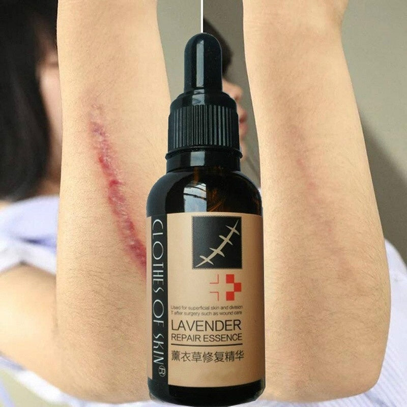10ML Durable Lavender Scar Repair Essence Acne Burn Stretch Marks Removal Skin Treatment