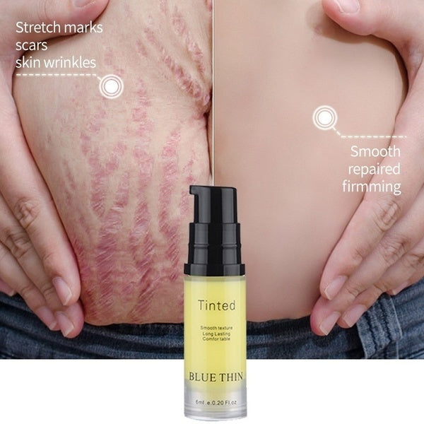 Scar Stretch Marks Cream Repair Cream Removal Acne Scar Stretch Marks Cream Fat Scar Striae Gravidarum Treatment Body Creams