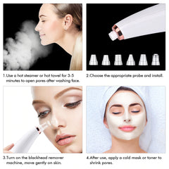 Blackhead Remover- How To Use