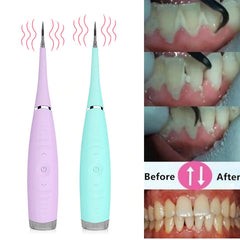 Electric Teeth Calculus Remover- Before and After
